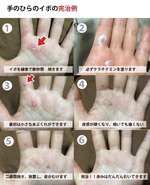 木酢 いぼ 液 性 ウイルス
